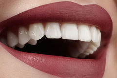 Wide smile of young beautiful woman, perfect healthy white teeth. Dental whitening, ortodont, care tooth and wellness Stock Photography