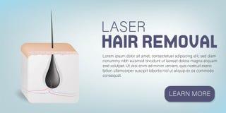 Widok Ludzka skóra z włosy Usunięcie włosy procedura 3D Wektorowa Realistyczna ilustracja, plakat ilustracji