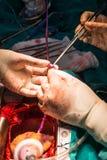 Wieńcowej arterii obwodnica przeszczepia żylnego przewód Zdjęcie Stock