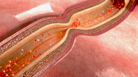 Wieńcowej arterii spazm