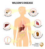 Wilson's disease Royalty Free Stock Images