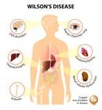 Wilsons sjukdom vektor illustrationer