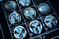 Wire on brain. Medical x-ray Royalty Free Stock Image