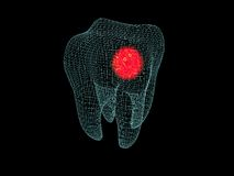 wireframe de mal de dents Image stock
