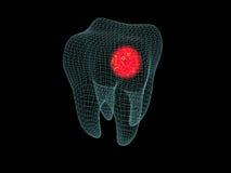 Wireframe del dolor de muelas Imagen de archivo