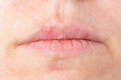 Wirusowa infekcja Fotografia Stock
