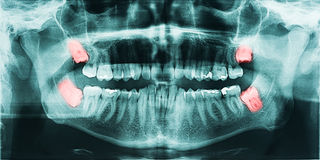 Wisdom Teeth Pain. Growing Wisdom Teeth Pain On X-Ray Stock Photo