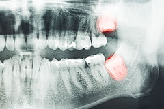Wisdom Teeth Pain. Growing Wisdom Teeth Pain On X-Ray Royalty Free Stock Images