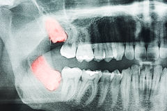 Wisdom Teeth Pain. Growing Wisdom Teeth Pain On X-Ray Royalty Free Stock Photography