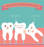 Wisdom Teeth Partial Eruption Impaction Stock Images