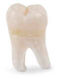 Wisdom Tooth. Human wisdom tooth on white with a clipping path