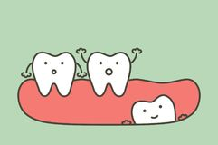 Wisdom tooth angular or mesial impaction affect to other teeth. Dental cartoon vector flat style cute character for design vector illustration