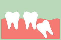 Wisdom tooth. Dental cartoon vector, wisdom tooth Stock Photography