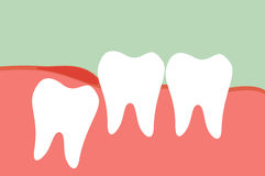 Wisdom tooth. Dental cartoon vector, wisdom tooth Stock Photos