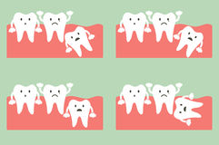 Wisdom tooth. Dental cartoon vector, type of wisdom tooth Royalty Free Stock Photo