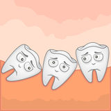 Wisdom tooth - Illustration. Vector Illustration of an impacted wisdom tooth Stock Photo