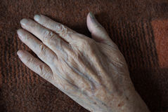 The withered hand of a patient lying on a background of old blan Royalty Free Stock Photos