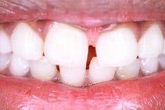 Witte tanden en roze gommen terwijl het glimlachen van rode lippen stock foto's