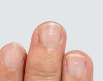 Witte vlekken op vingernagels stock afbeelding