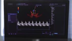 Wizerunek na monitorze medyczna ultradźwięk maszyna zbiory