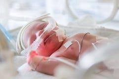 Wizerunek przedwczesny dziecko w inkubatorze zdjęcie stock
