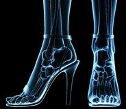 Wolumen feet under x-ray. Women feet under x-ray, rtg Royalty Free Stock Photos