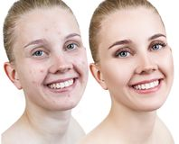 Woman with acne before and after treatment and make-up. Skin care concepts Royalty Free Stock Photos