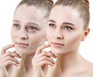 Woman with acne before and after treatment and make-up. royalty free stock photo