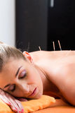 Woman at acupuncture needles in back Stock Image