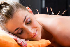Woman at acupuncture needles in back. Woman at acupuncture session with needles in back having alternative therapy Stock Photo