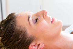 Woman at acupuncture with needles in face Royalty Free Stock Image
