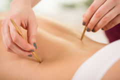 Woman during acupuncture session. Close-up of woman relaxing during acupuncture session Royalty Free Stock Images