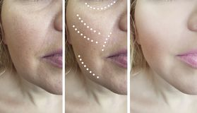 Woman patient adult wrinkles contrast face correction lifting before and after skin regeneration. Woman adult patient face wrinkles before after removal skin stock images