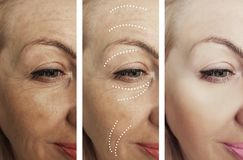 Woman adult skin wrinkles removal before after collage cosmetology regeneration treatments contrast. Woman adult skin wrinkles before and after removal contrast stock images
