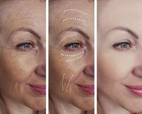 Woman adult skin wrinkles removal lifting beautician before after collage cosmetology regeneration treatments contrast. Woman adult skin wrinkles before and stock photos