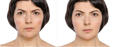 Woman with and without aging singes, double chin, worry wrinkles, nasolabial folds before and after cosmetic or plastic procedure,. Anti-age therapy. Botox Stock Images
