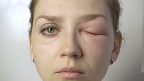 Woman with allergy looking up, down, left, right stock video footage
