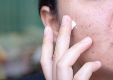 Free Woman Applying Cream Onto Face That Has Problem Problematic Skin , Acne Scars ,oily Skin And Pore, Dark Spots And Blackhead And Stock Images - 138214064