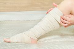 Woman applying elastic compression bandage as a thrombosis prevention after varicose surgery. Woman applying elastic compression bandage after varicose surgery royalty free stock photos