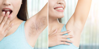 Woman with armpit plucking. Asia beauty woman with armpit plucking problem before and after Royalty Free Stock Image
