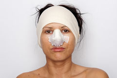 Woman with bandaged nose. Portrait of a woman with her nose heavily bandaged after plastic surgery or after being beaten. White background royalty free stock photo