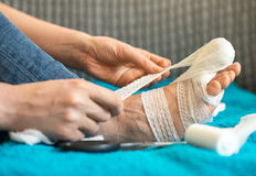 Woman bandaging her injured leg. Royalty Free Stock Photo