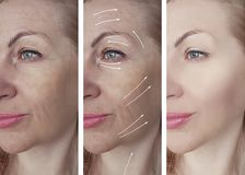 Woman beauty wrinkles before after medicine therapy procedures, tightening rrow. Woman beauty wrinkles before and after procedures tightening therapy medicine royalty free stock photography
