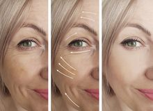 Woman beauty wrinkles before and after medicine therapy procedures, tightening rrow. Woman beauty wrinkles before and after procedures arrow tightening therapy royalty free stock image