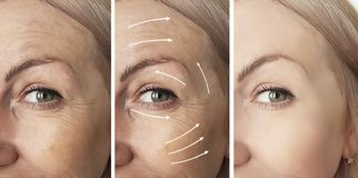 Woman beauty wrinkles before and after therapy procedures, tightening rrow. Woman beauty wrinkles before and after procedures arrow tightening therapy royalty free stock images