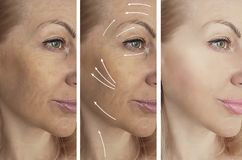 Woman beauty wrinkles before after medicine therapy procedures, tightening rrow. Woman beauty wrinkles before and after procedures tightening therapy medicine stock photography