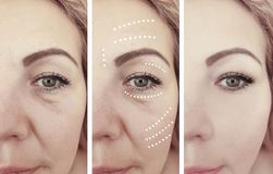 Woman beauty wrinkles removal treatment antiaging cosmetology before and after correction procedures. Woman wrinkles before and after correction procedures stock images