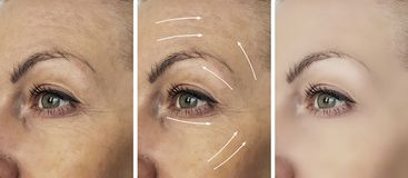 Woman beauty wrinkles before treatment after medicine therapy procedures, tightening rrow. Woman beauty wrinkles before and after procedures tightening therapy royalty free stock photos