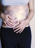 Woman with belly wrapped in plastic. Belly of a caucasian woman wrapped up in a plastic film royalty free stock images