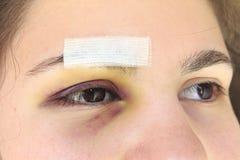 Woman with black eye stock photos